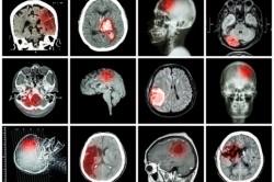 Sikertörténet a stroke ellátásában