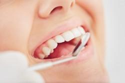 Öngyógyító sejtek: a fogunkat is betömik