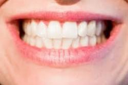 Fokozott fogászati kontroll szükséges...