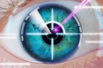 Szürkehályogműtétre ment, 27 kontaktlencsét találtak a szemében