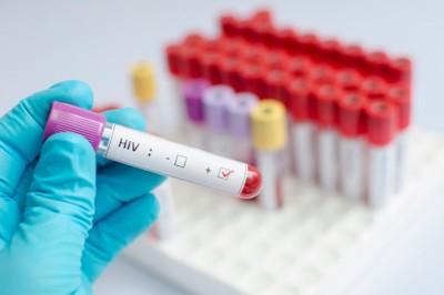 Jól teljesít Magyarország a HIV elleni küzdelemben