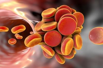 Trombózis Világnap: a rettegett és ismeretlen betegség