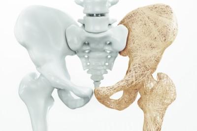 Így előzheti meg a csontritkulást