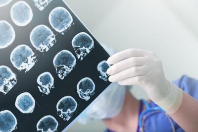 Az agyban történik, de az egész szervezetre hat. Mi az?