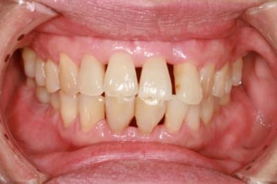 Népbetegségnek számít a fogágybetegség Magyarországon