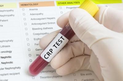 4 ok a CRP vizsgálat elvégeztetésére