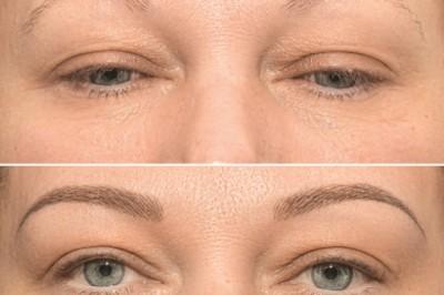 Mit néznek meg a férfiak a női arcon?